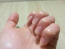 Spring Avitaminosis Of Nails