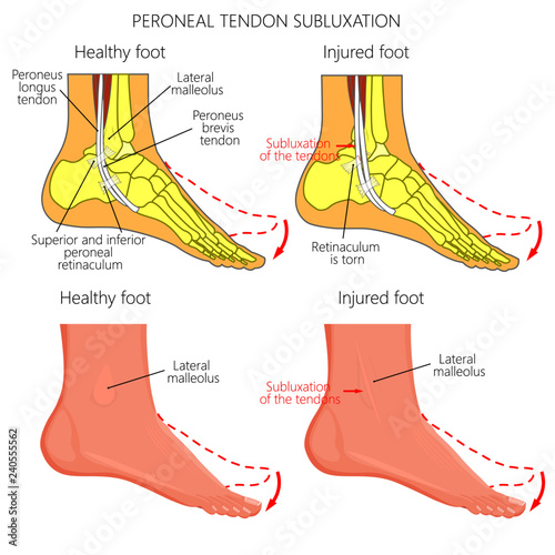 Photo Vector illustration of Peroneal Tendon Injuries