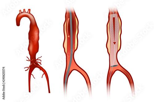 Endovascular aneurysm repair (or endovascular aortic repair) (EVAR) Wallpaper Mural