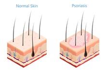 Cut Human Skin In Isometric St...