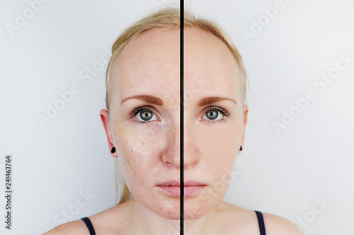 Fotografía  Oily skin and clear skin
