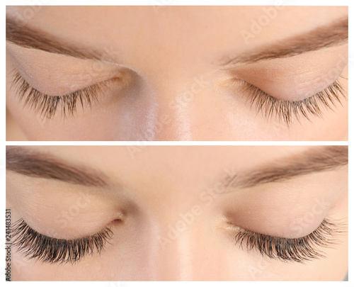 Photo Young woman before and after eyelash extension procedure, closeup