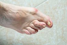 Foot Deformed By Hallux Valgus