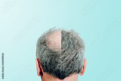 Fotografía  Before and after, Rear view of a male head without hair
