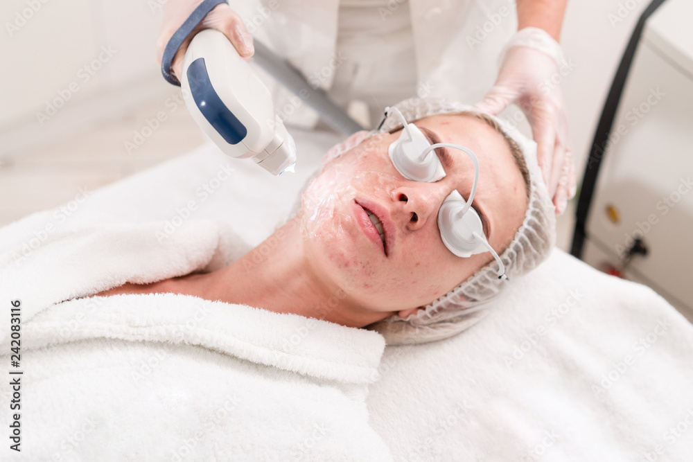 Fototapeta The doctor applies a special gel to the patient. Anti acne phototherapy with professional equipment. Beautiful woman during photo rejuvenation procedure. Face skin treatment at cosmetic clinic.