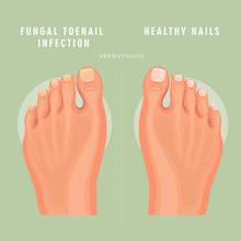 Fungus Toenail Infection Vecto...