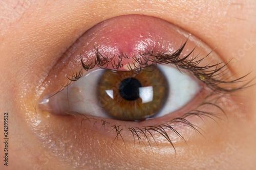 Hordeolum on upper eyelid. Viral infection Wallpaper Mural