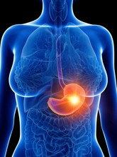 Illustration Of A Woman's Inflamed Stomach