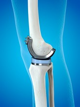 Illustration Of A Knee Replace...