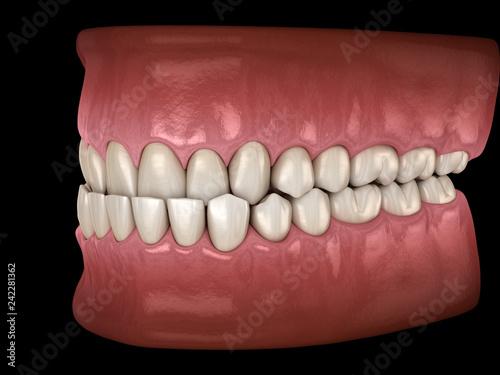 Underbite dental occlusion ( Malocclusion of teeth ) Canvas Print