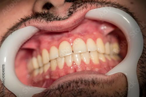 Fotografie, Obraz  Dentes