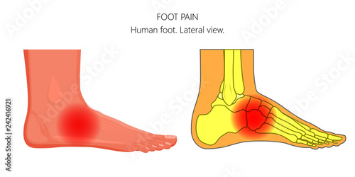 Vector Illustration Of Unhealthy Human Foot With Midfoot Pain Or Injury Lateral Or Side View For Advertising And Other Medical Publications Buy This Stock Vector And Explore Similar Vectors At Adobe