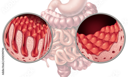 Fotografia  Celiac Coeliac Intestine Disease