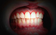 canvas print picture - Mouth with bleeding gums on a dark background