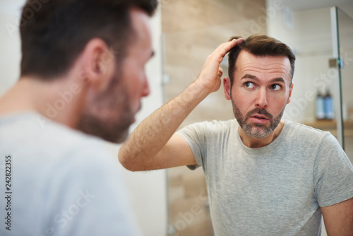 Foto  Mature men is worried about hair loss