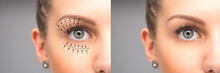 Female Eyes Before And After B...