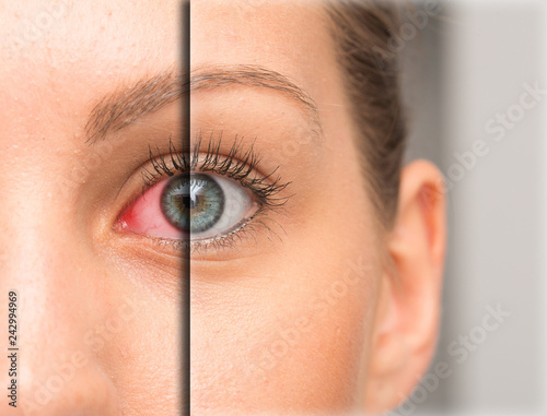 Cuadros en Lienzo  Red eye before and after eyedrop treatment