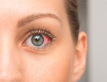 Eye Redness On Sclera