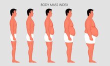Vector Illustration Human Body Mass Index, European Man From Lack Of Weight To Obesity Side View. For Advertising Of Cosmetic, Plastic Procedures, Stomach Shunting, Diet, Medical Publications