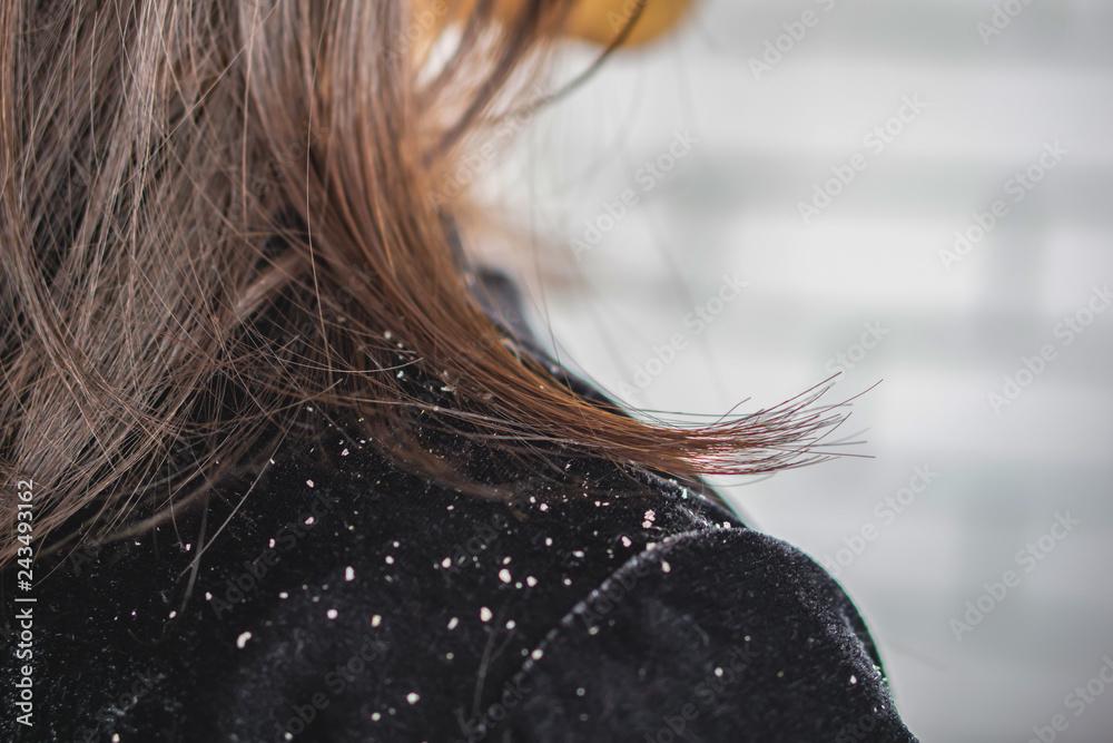Fototapeta  closeup woman hair with dandruff falling on shoulders