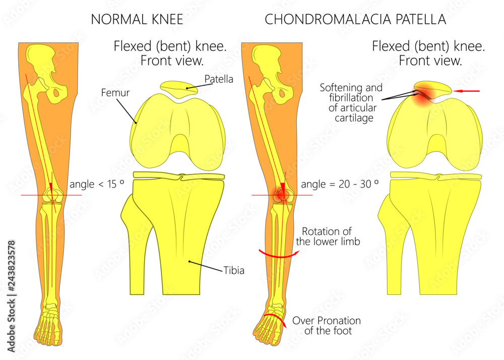 photo \u0026 art print illustration (diagram) of normal leg withknee joint anatomy bones, ligaments