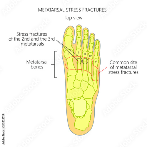 Stampa su Tela Illustration (Diagram) of Metatarsal Stress fractures in the foot