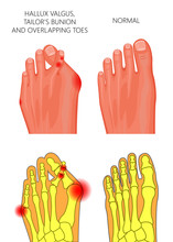 Illustration Of The Hallux Valgus, Tailor's Bunion And Overlapping Or Displaced Toes