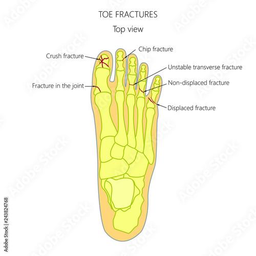 Fotografia Illustration (diagram) of toe fracture types.