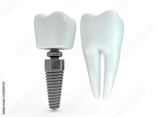 Fotografie, Obraz  Dental implant dentist, tooth layout, plastics, man, teeth, treatment
