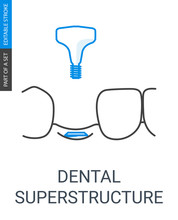 Dental Superstructure Installation