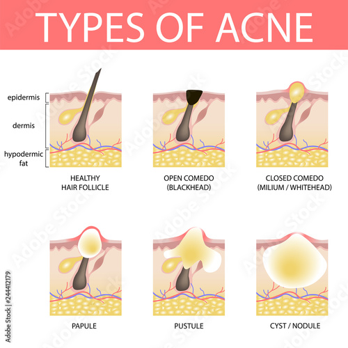 Medical vector illustration of different types of acne on human skin Canvas Print