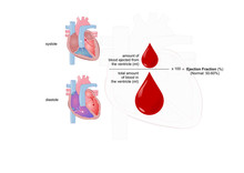 Ejection Fraction: Measure Of The Heart Functionality