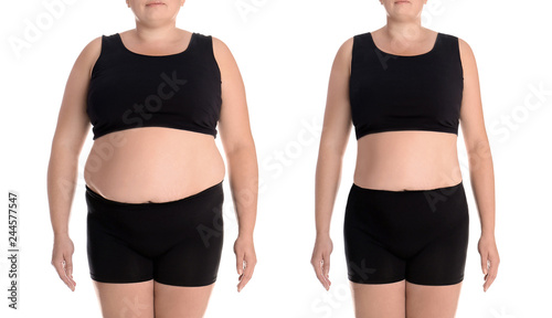 Fotografia, Obraz  Young woman before and after weight loss on white background, closeup