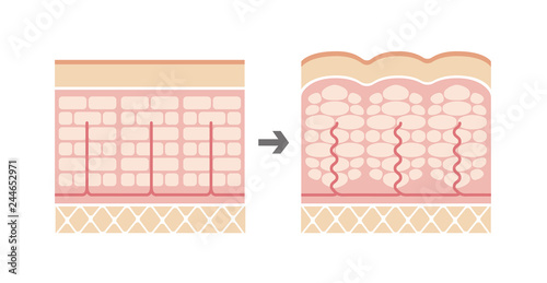 Photo Comparative illustration of normal skin and cellulite's skin (No text)