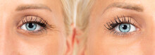 Wrinkles Cosmetic Treatment, I...