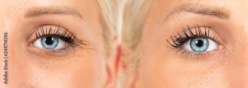 Fotografie, Obraz  wrinkles cosmetic treatment, images composition showing results before and after