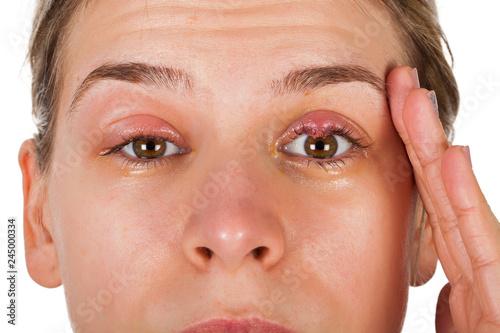 Chalazion - Eyelid infection Canvas Print