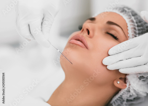 Obraz na plátně  Aesthetic face surgery,cosmetic technique, mesothreads lifting and contouring fa