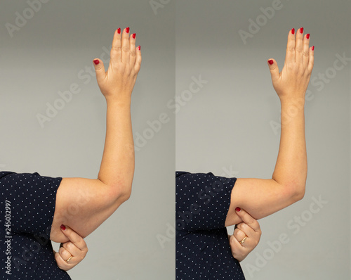 Fotografie, Obraz  Flabbiness on woman arm before and after slimming diet