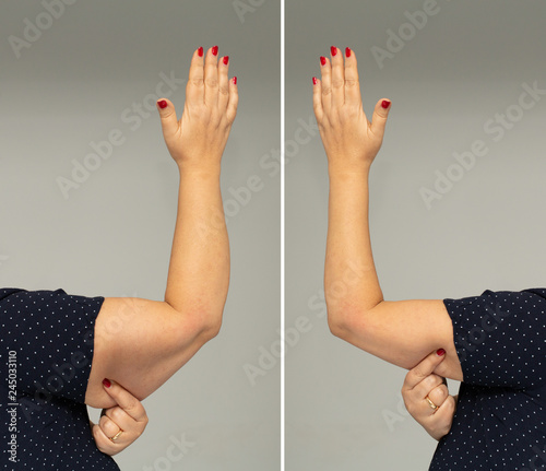 Photo Adipose panniculus in the triceps before and after diet