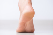 Close Up Of Cracks On Heels With Bad Skin Covered. Healthcare And Medical Concept.