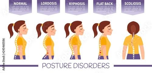 Fotografía  Infographics of posture disorders