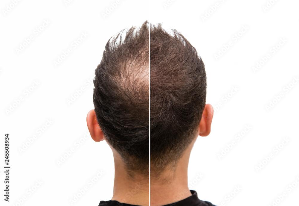 Fototapeta Vorher Nachher - Halbglatze eines Mannes mit Haarausfall