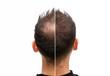 canvas print picture - Vorher Nachher - Halbglatze eines Mannes mit Haarausfall