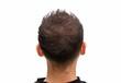 canvas print picture - Volles Haar ohne Kahlkopf bei vorheriger Glatze