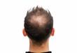 Leinwanddruck Bild - Halbglatze eines Mannes mit Haarausfall