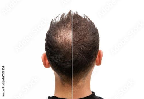 Photo Vorher Nachher - Halbglatze eines Mannes mit Haarausfall