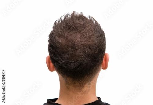 Volles Haar ohne Kahlkopf bei vorheriger Glatze #245508949