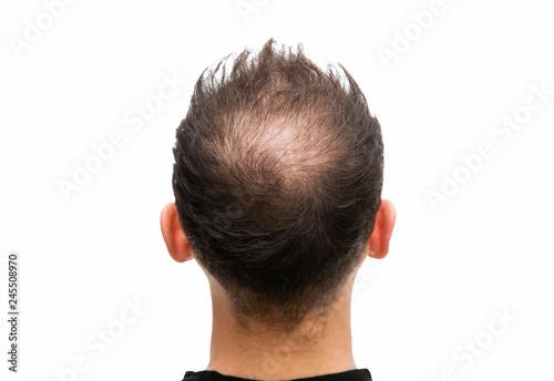 Halbglatze eines Mannes mit Haarausfall  #245508970
