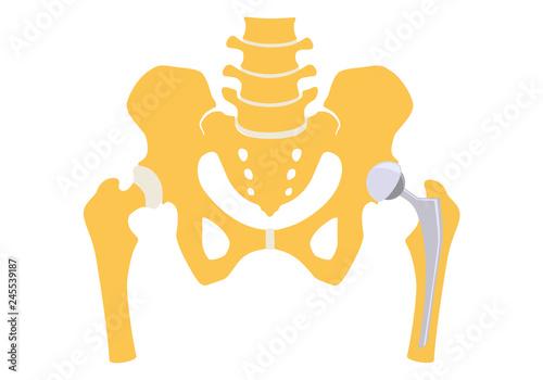 Carta da parati Total hip replacement. Vector illustration.